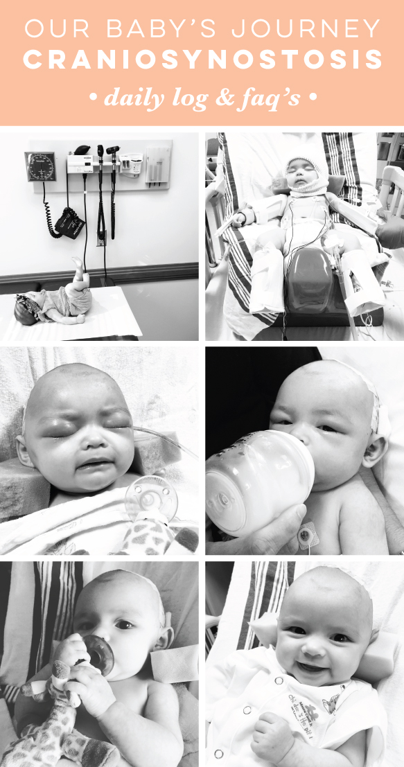 Our Baby's Journey with Craniosynostosis // Jitneys Journeys