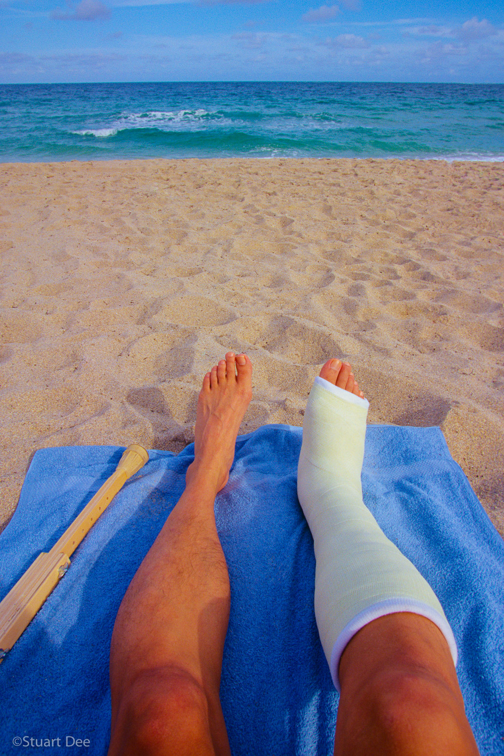 Man's legs and crutch on beach towel, Miami Beach, Florida, USA