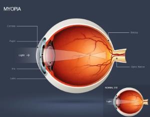 diagram-myopia.jpg