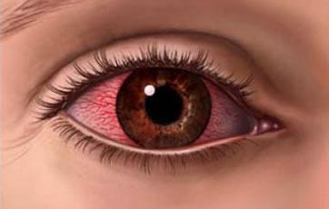 irritated-eye.jpg