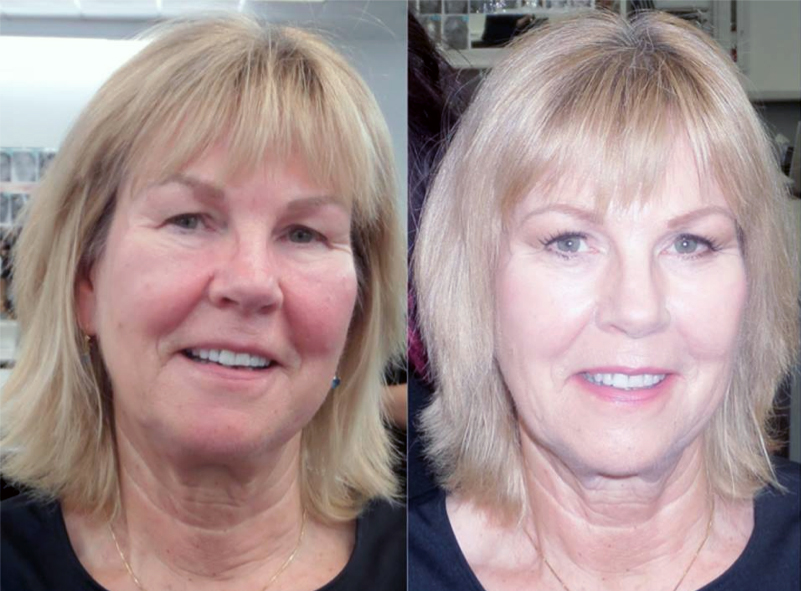 BEFORE NO MAKEUP                                AFTER *Makeup Applied by a Donna Mee Graduate