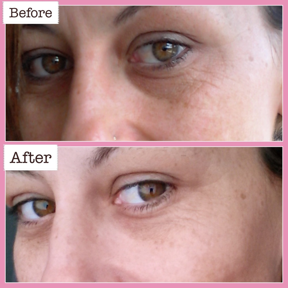 BEFORE & AFTER using NEWA® Skin Rejuvenation System (Click for close up)