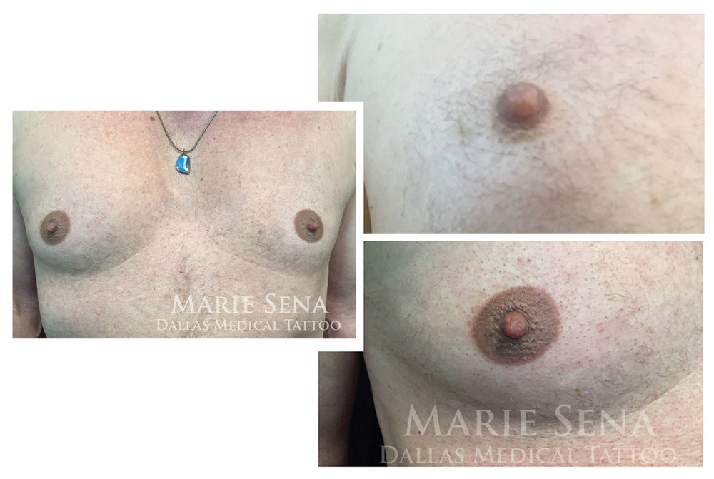 Male areola tattoo to correct abnormally small areolae