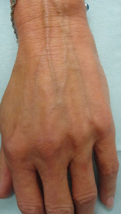 Pre-Treatment:  In this 68 year old female note the prominence of veins and wrinkled appearance of the skin distal to the wrist