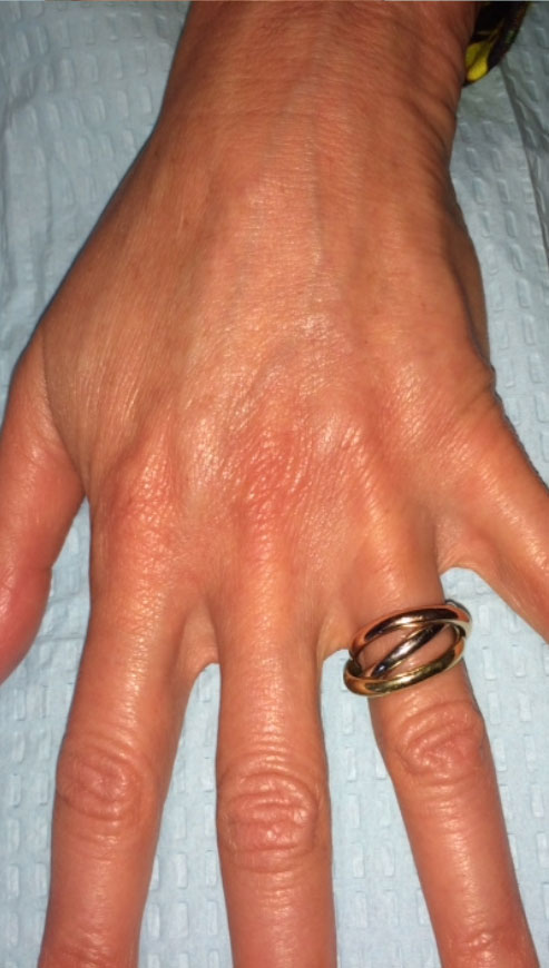 Post-Treatment:  Two months post treatment with Radiesse™. The veins are significantly less prominent and the hand has an overall more youthful appearance