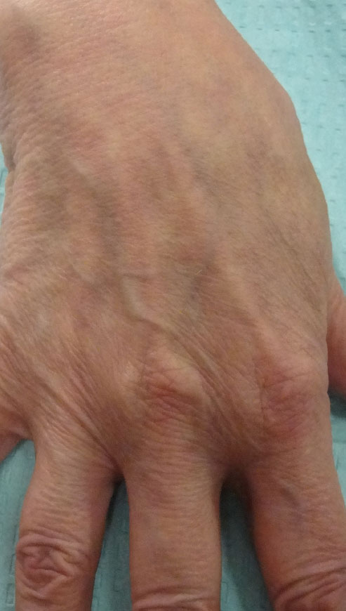 Pre-Treatment:  75 year old female pre-treatment; note the prominent veins and tendons and the wrinkled appearance of the skin