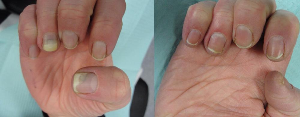Onychopapilloma -- a rare tumour of the nail apparatus