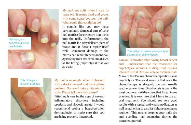 Nail Melanoma — Dr. Dana Stern | Dermatologist | Nail Specialist