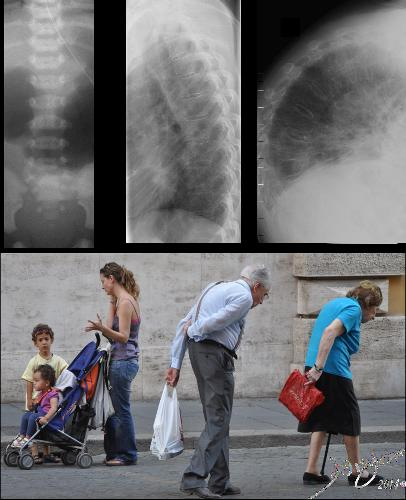 Time in Biology - People The top row of images from left to right reflect, A-P examination of the immature lumbar spine of very young patient, juxtaposed with the lateral examination of a normal thoracic of a normal young adult and lastly the lateral examination of a severely kyphotic elderly patient. The photograph was taken in Italy showing ages ranging from the youngest child in a stroller perhaps 2 years in age, her brother of about 5 or 6, their mother in her late twenties or early thirties and an elderly couple both suffering from the wraths of aging bones - osteoporosis and severe kyphosis. (the kyphosis couple) Davidoff Art Copyright 2014 2011 75578c01.8s