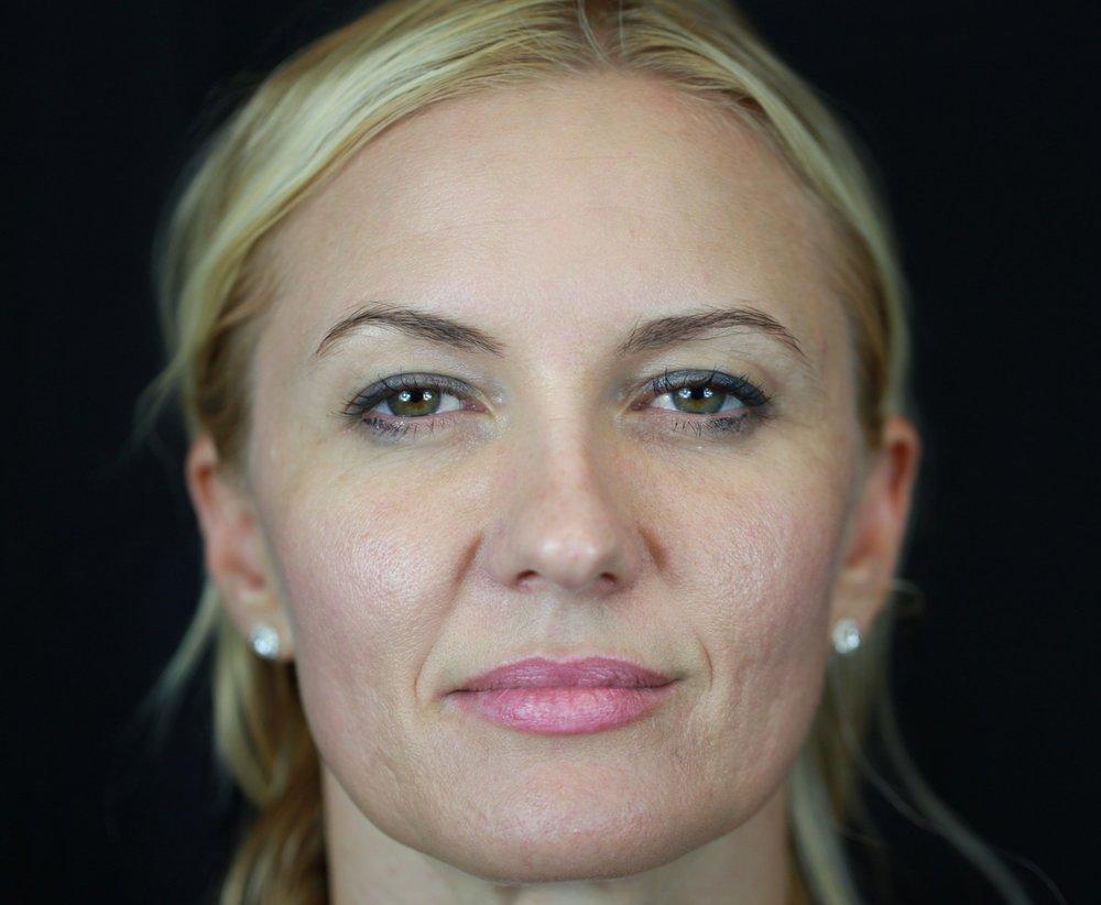 Before Acupuncture Treatment | Facial Lift | Wrinkle Reduction | Nashville