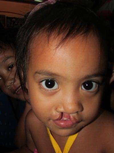 facial deformity causes