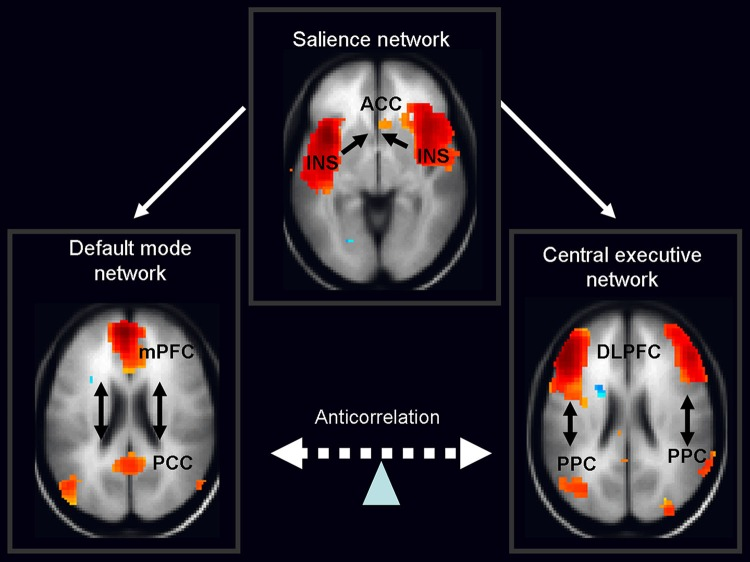 Schematic figure of the triple network model consisting of the default mode network (DMN), salience network (SN) and central executive network (CEN)