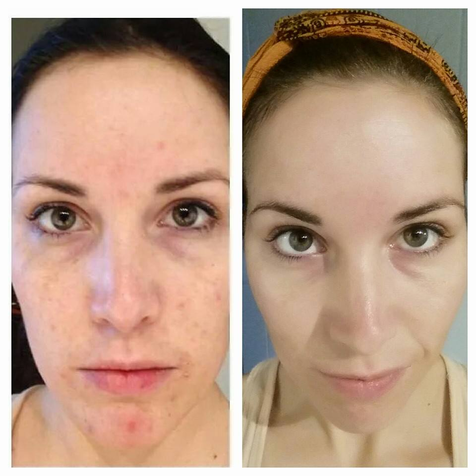 Image on left, before Hippie Skin.  Image on right:  6 months later. (Small breakouts cleared and skin tone evened within about 2 weeks - deep cystic acne took about 6 mos)