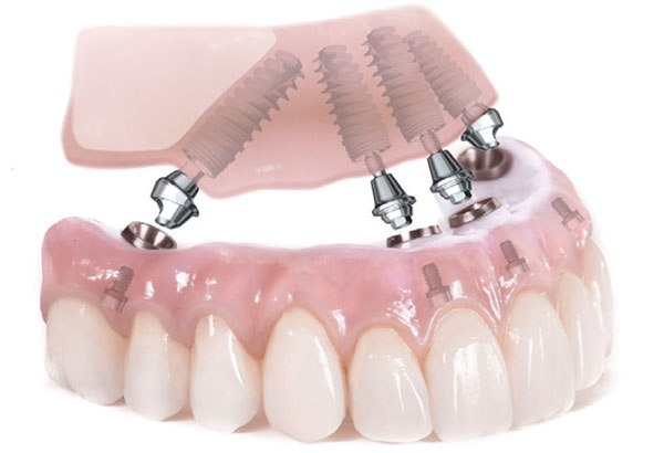 All-on-four on denture teeth