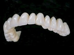 Porcelain (full zirconia) teeth used on all-on-8 implants