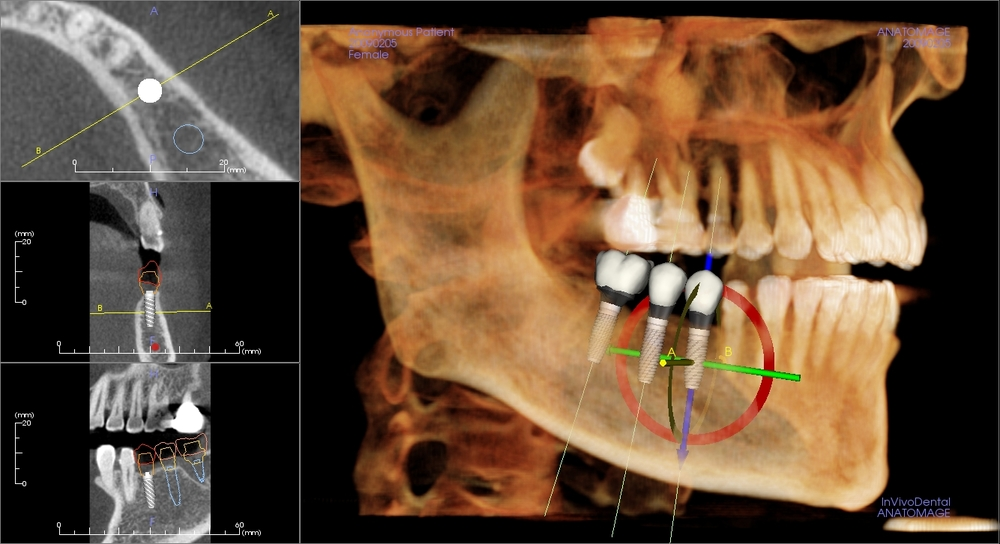 Lastest 3D imagingi technology enable accurate, safe, and predictable surgery.