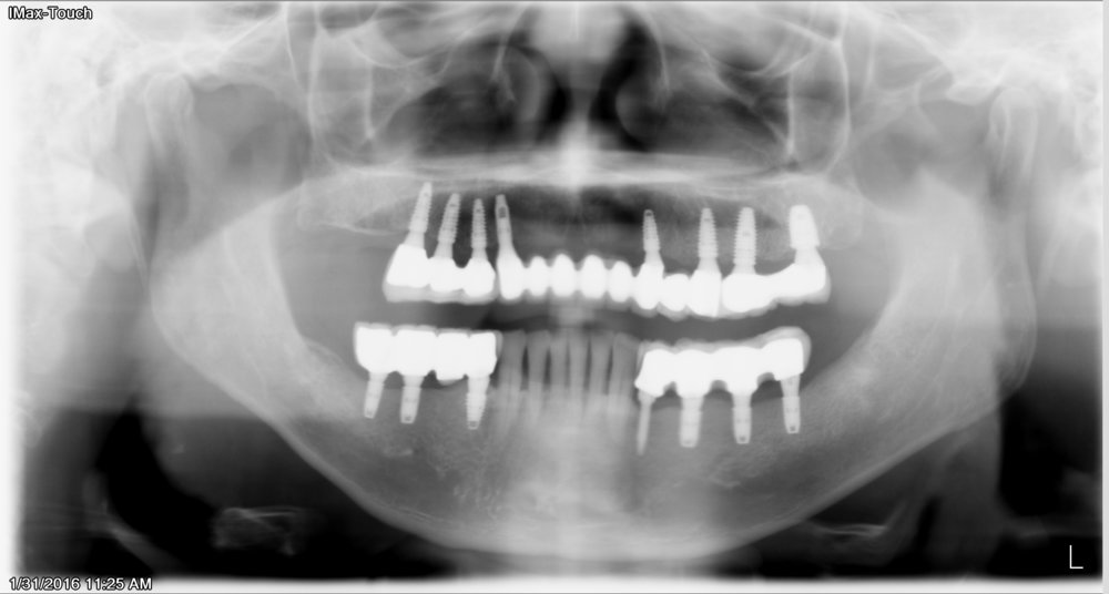 Upper Arch supported by 8 implant.