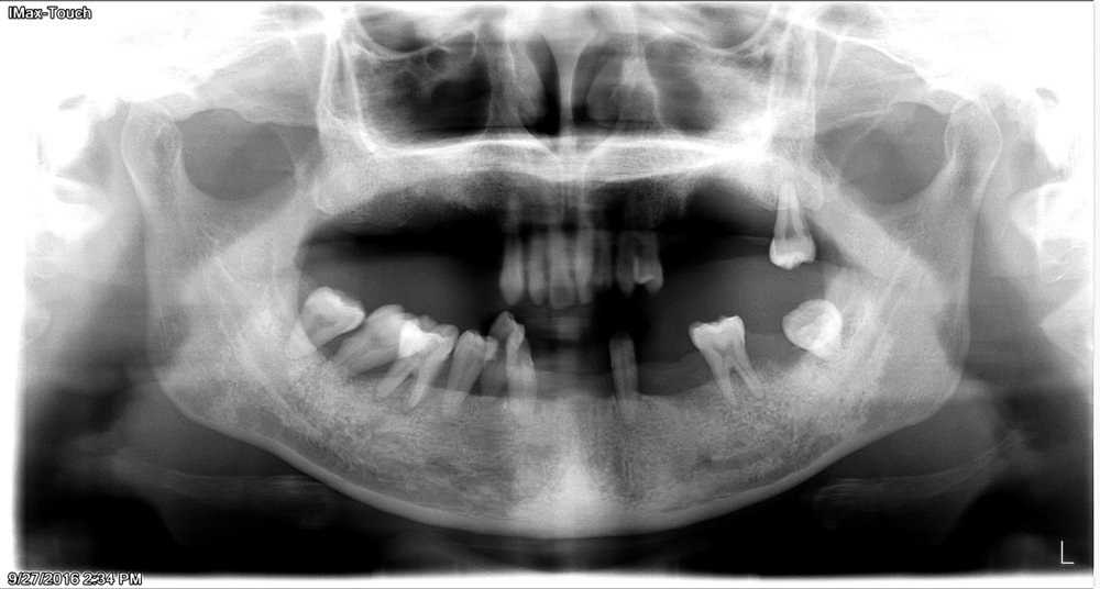 Before - Patient suffering from loose teeth due to severe periodontal disease