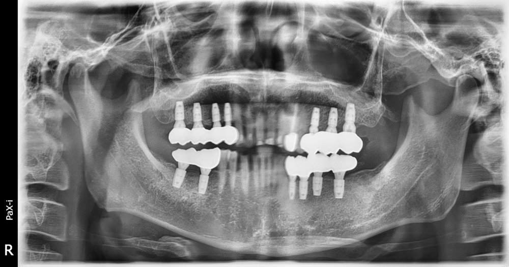 After - with few dental implants, patient can now eat whatever he wants.
