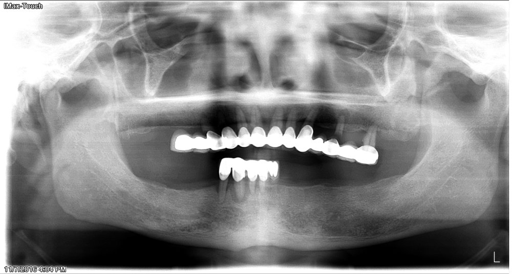 Before - pain  on lower teeth; Patient do not want to wear complete dentures due to fear of changing face shape.