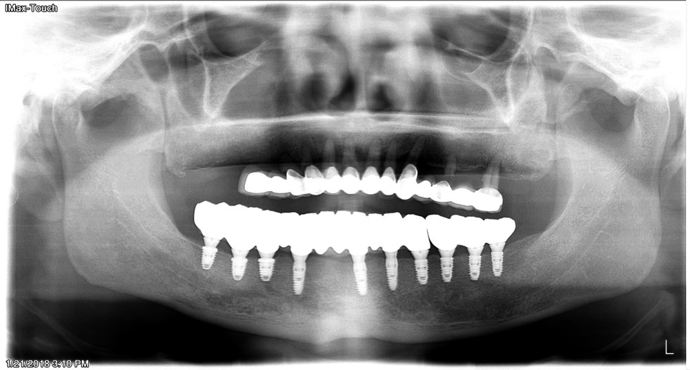 Afer - Dental implants was placed and patient can maintain his bone and facial musculature.