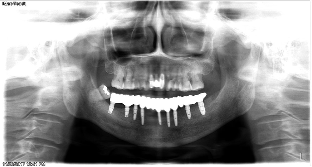 After - implant placed and function is restored. Patient want to keep lower right wisdom teeth for now.