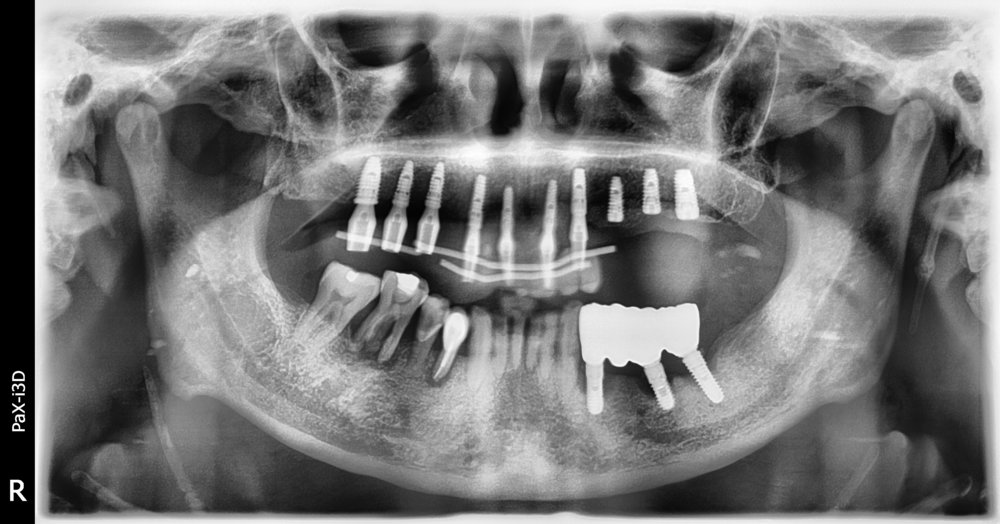 Upper implant in temporary phase.