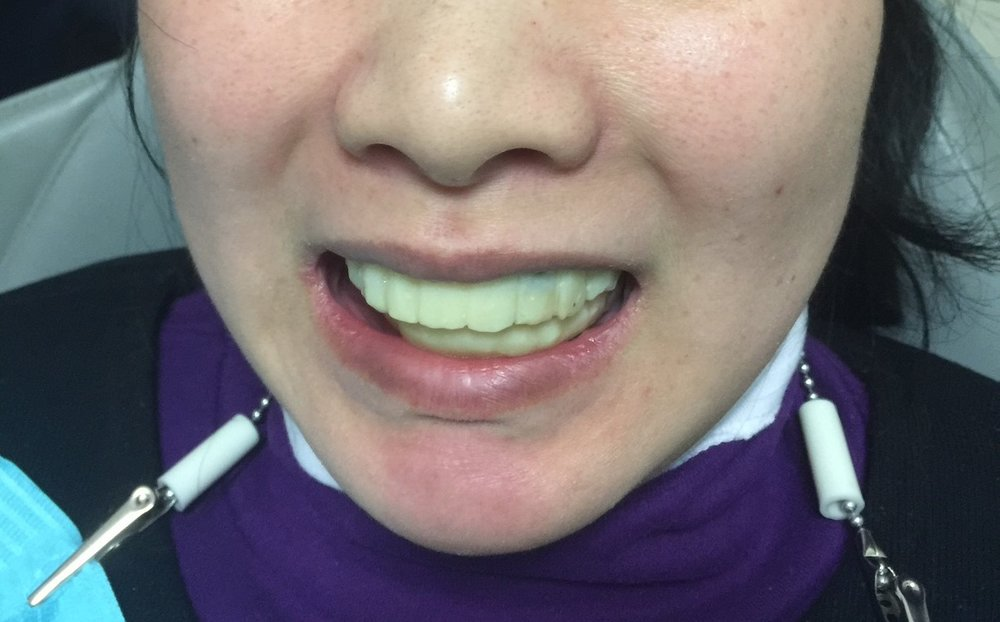 All her teeth were extracted and patient is in temporary.  We also had to trim away her excess gum and corrected her smile line. Temporary are not as pretty as the final restoration but still an improvement compare to her original teeth.