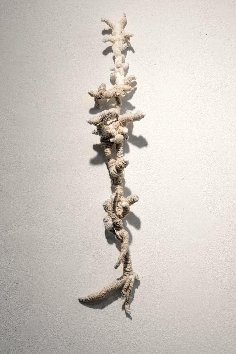 Gingerly Wound Yasmeen Abdallah