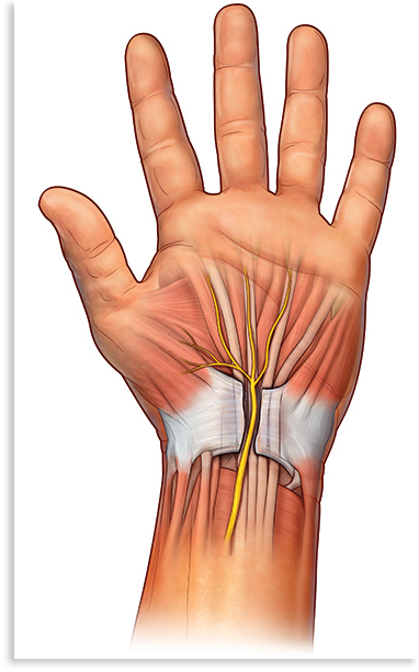 腕管肿胀会压住正中神经,引起 CTS。手术治疗会切开横向腕韧带,为正中神经腾出空 间。最终,新的组织会填满韧带切口处的缝隙。