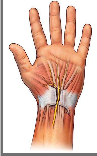 O edema no túnel do carpo pode comprimir o nervo mediano, causando STC.Os tratamentos cirúrgicos cortam o ligamento transverso do carpo a fim de abrir espaço para o nervo.Com o tempo, o novo tecido preencherá o espaço onde o ligamento foi cortado.
