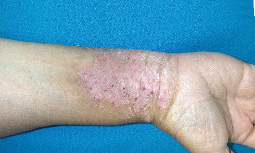 Psoriasis, eczema, dermatitis and vitiligo (loss of pigmentation) sufferers flock to the Dead Sea 2