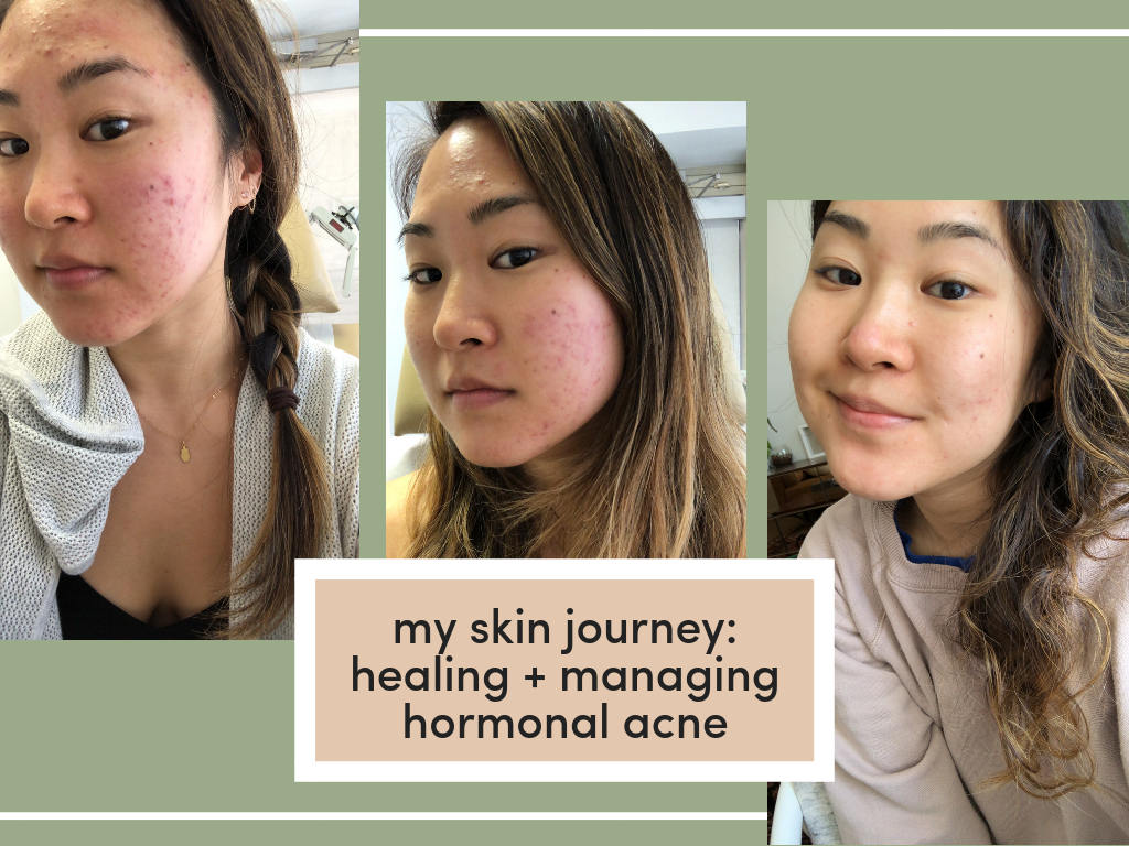 My Hormonal Acne Journey Healing Managing Acne Living Minnaly