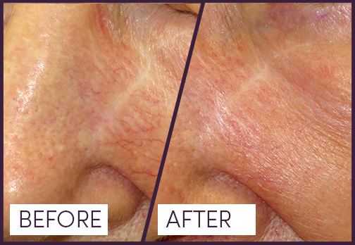 Treatment for Facial Veins