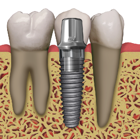 """The three components of a """"dental implant"""": titanium implant, abutment and crown."""
