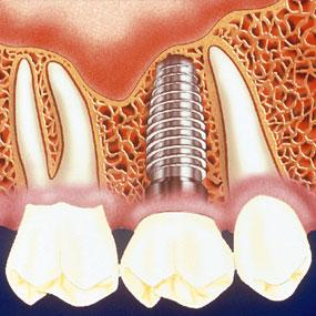 illustration of a dental implant, crown and abutment