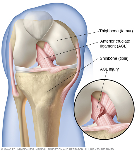 Acl series anatomy lets get oriented shall we vesta view from the front of the knee prominently showing the acl ligament crossing in front ccuart Image collections