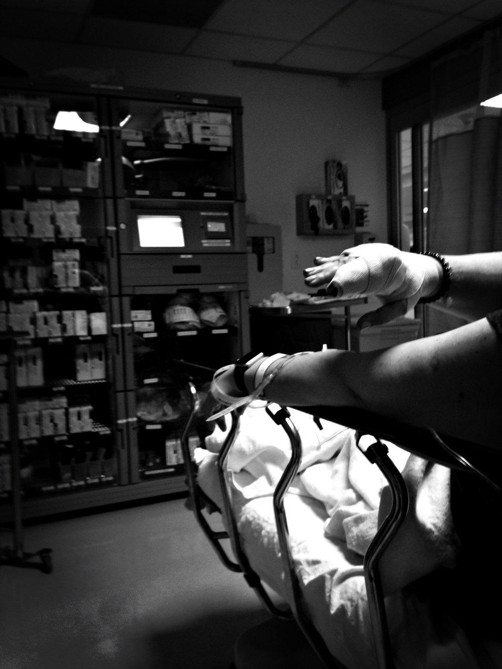 """Broken Hand - A First Look"" - Foto by Gabrielle Lopez"