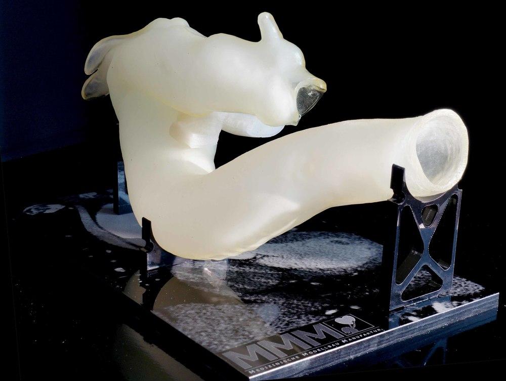 Im 3D-Druck Im 3D-Druckverfahren gefertigte Aorta mit Darstellung des Aneurysmas, HumanX copyrigth MMM GmbH