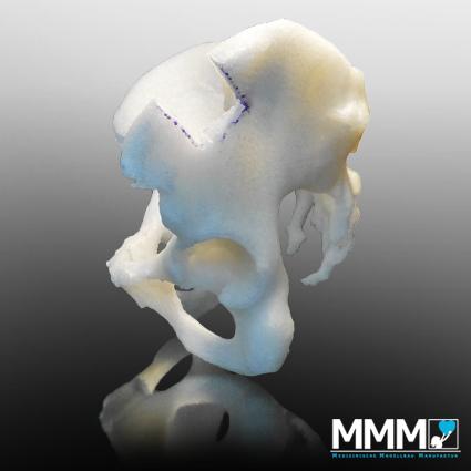 patientenspezifisches Modell Ortho Seitansicht
