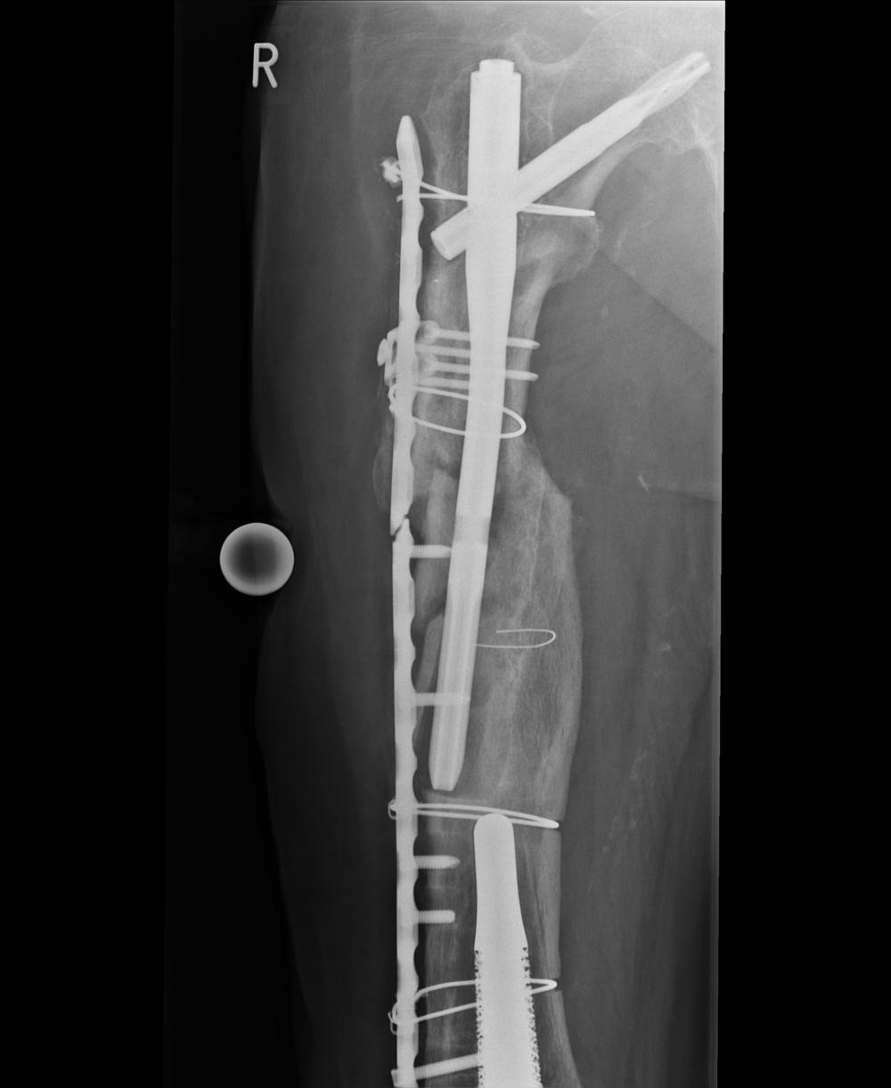 Diagnostik Fall 3 - Röntgen, Mediznische Falldatenbank