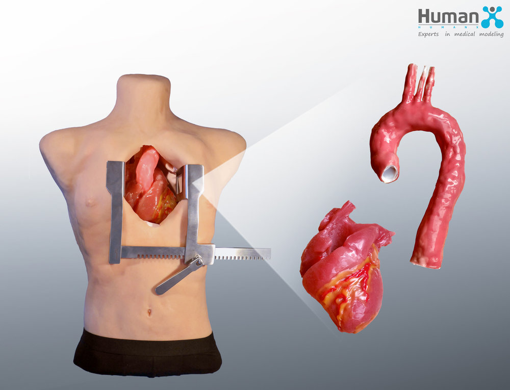 Herz-Thorax Kopie.jpg