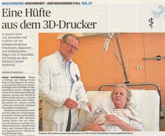 Huefte 3D-Druck_LausitzerRundschau.PNG
