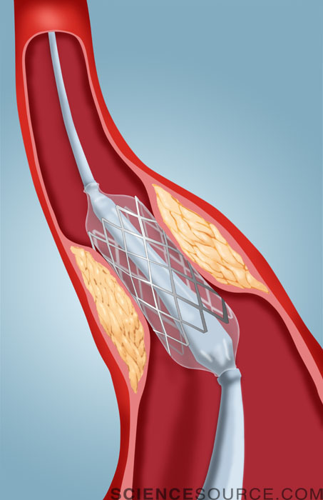 Angioplasty with Stent
