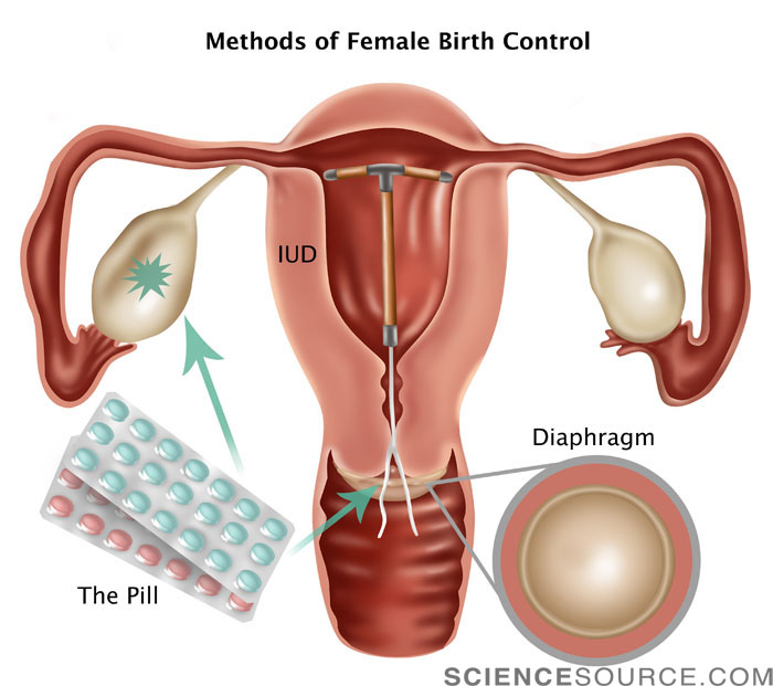 Female Birth Control