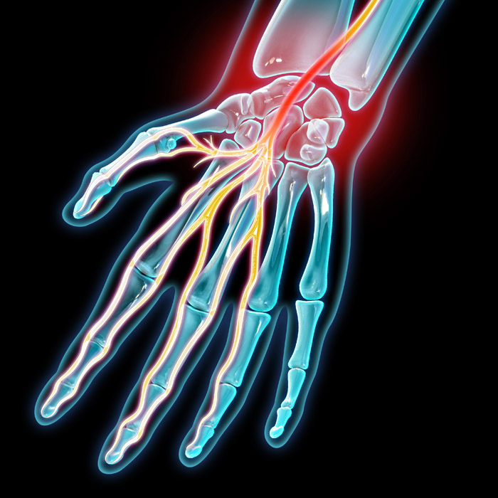 Carpal Tunnel Syndrome, Illustration