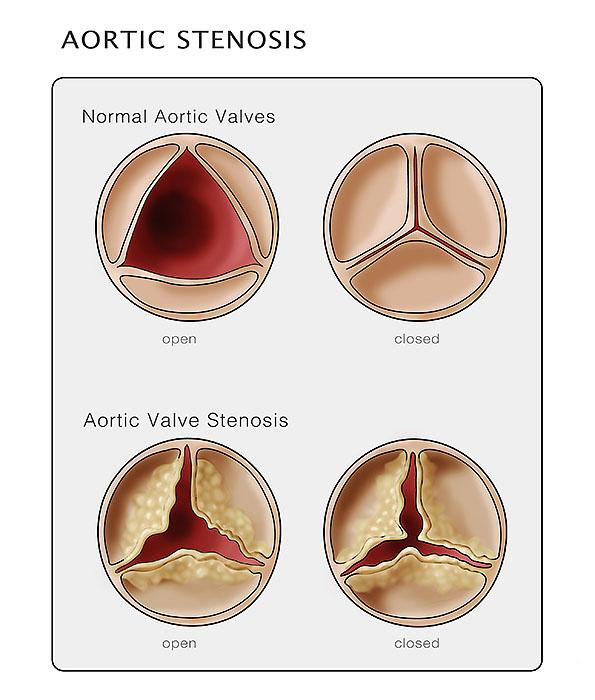 Aortic Valve & Stenosis