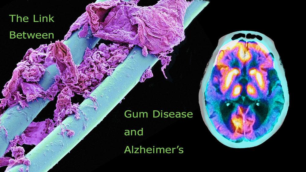 gum-disease-alzheimer.jpg