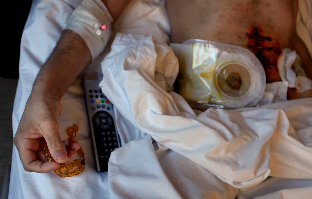 Injured Syrian rebel fighter, Antakya, Turkey 2012