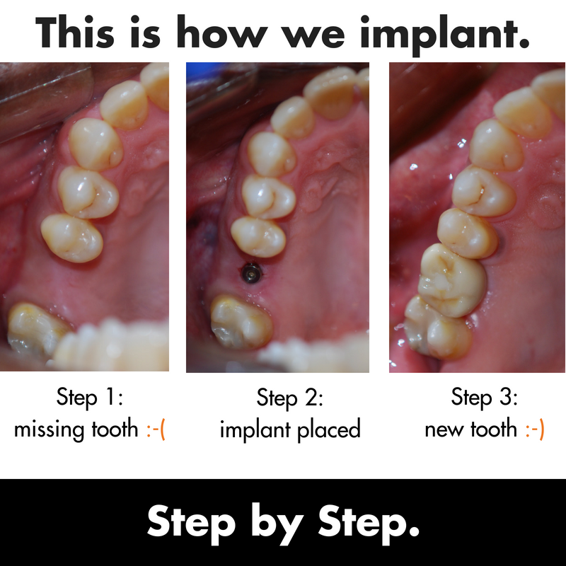 180707 Implant copy.png